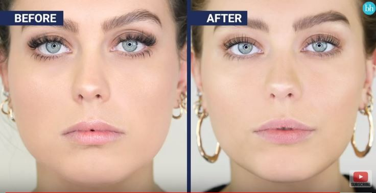 Esthetique Genève- Injections Botox - Masseter Jawline Slimming