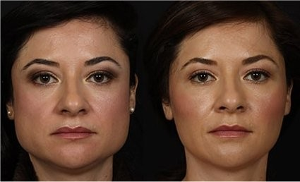 Esthetique Genève- Injections Botox - Masseter