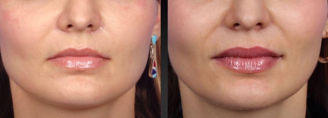 Esthetique Genève - épaississement lèvre supérieure