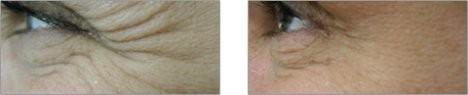 Esthetique Genève - Injections Botox patte d'oie des yeux