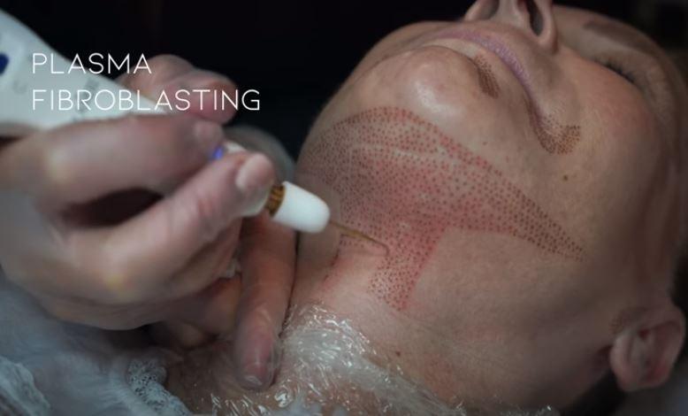 Esthétique Genève - Plasma Pen Sous-Menton et Cou