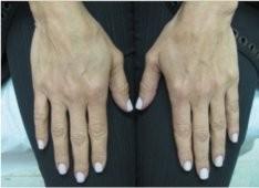 Esthetique Genève - Injections acide hyaluronique et Radiesse pour rajeunir les mains