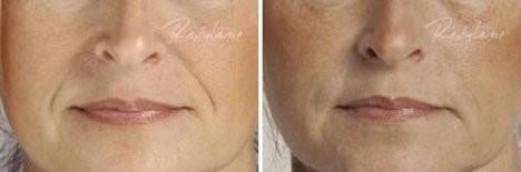 Esthetique Genève - Injections acide hyaluronique sillon nasogénien - avant après