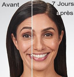 Esthetique Genève-Injections Botox