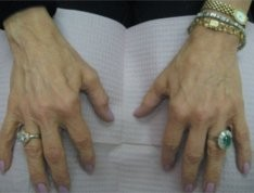 Esthetique Genève - Injections de Radiesse - rajeunissement des mains