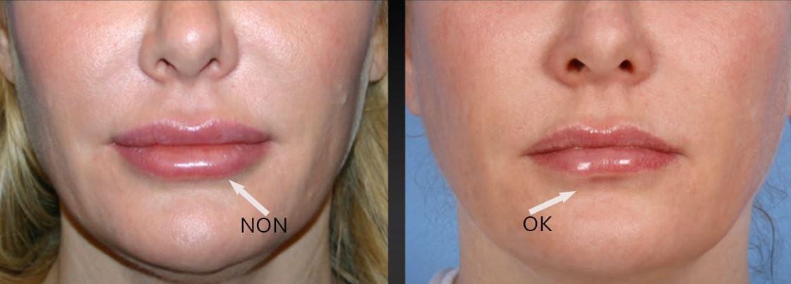 Esthetique Genève - boudinnement lèvre inférieure