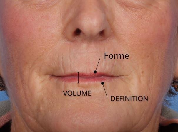 Esthetique Genève - Vieillissement des lèvres lèvres
