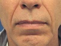 Esthetique Genève - Injections acide hyaluronique - Sillon nasogénien