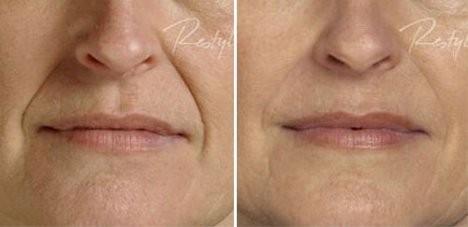 Esthetique Genève - Injections Filler pour sillon nasogénien