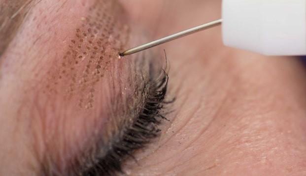 Esthetique Genève - Plasma pen paupières procédure blépharoplastie