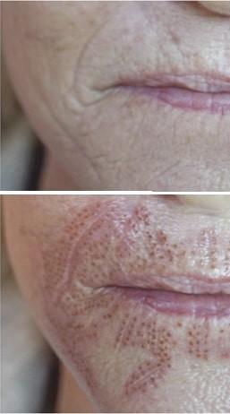 Esthetique Genève - Traitement au Plasma Pen des rides de la lèvre