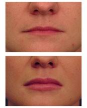 Esthetique Genève - Injections acide hyaluronique pour repulper les lèvres