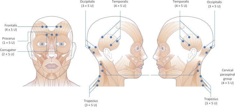 Esthetique Genève- Injections Botox - Migraine