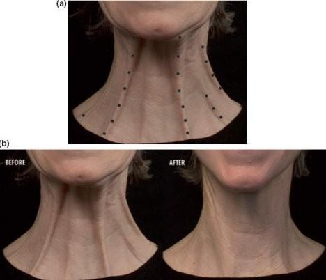 Esthetique Genève - Injections Botox muscles du cou