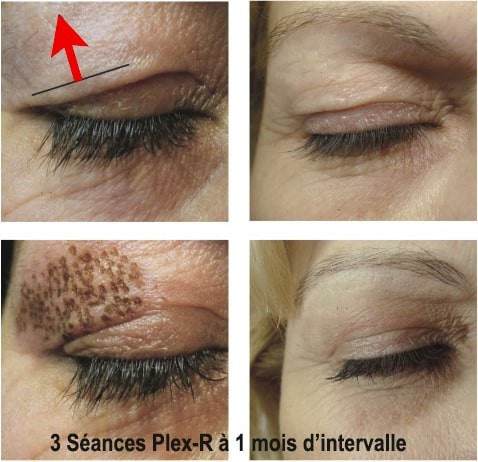 Esthetique Genève - Plasma pen paupières résultat blépharoplastie