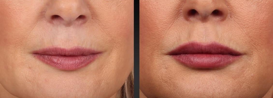 Esthetique Genève - Remodelage des lèvres âge moyen
