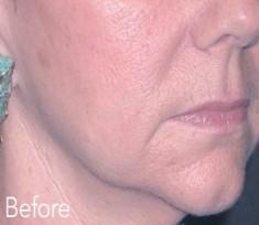 Esthetique Genève - Injections Filler contour visage - Avant