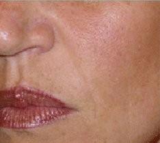 Esthetique Genève - Injections d'acide hyaluronique pour sillon nasogénien