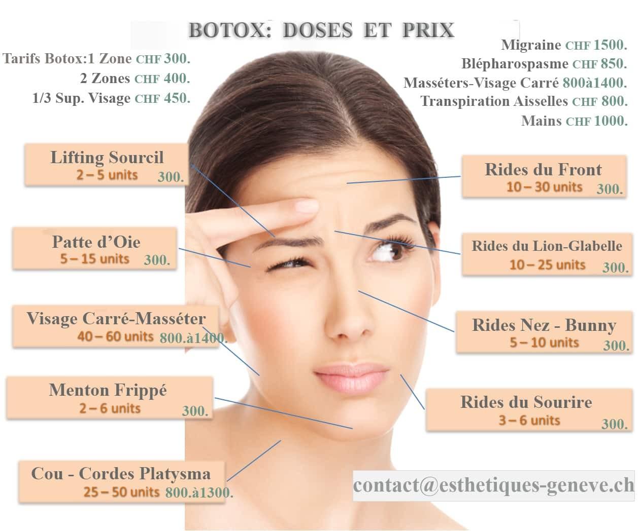 Esthetique Genève - Botox Genève, Prix selon la zone et dose