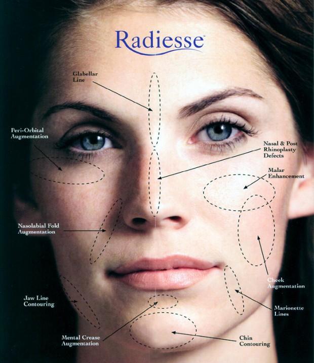 Esthetique Genève - Injections Botox et Filler- Zones