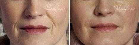 Esthetique Genève - Sillon nasogénien - Injections Filler avant après