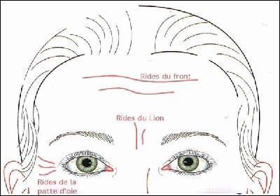 Esthetique Genève - Injections Botox au front- rides du lion