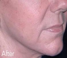 Esthetique Genève - Injections Botox et Filler contour du visage