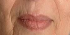 Esthetique Genève - Injections acide hyaluronique dans le sillon amertume