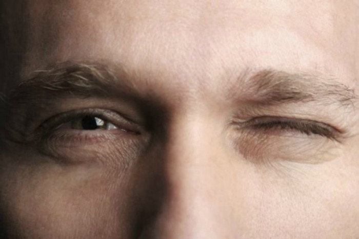 Esthetique Genève- Injections Botox - Blepharospasme
